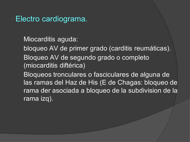 Electro cardiograma. Miocarditis aguda: