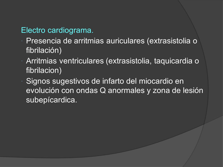 Electro cardiograma. Presencia de arritmias auriculares (extrasistolia o fibrilación)
