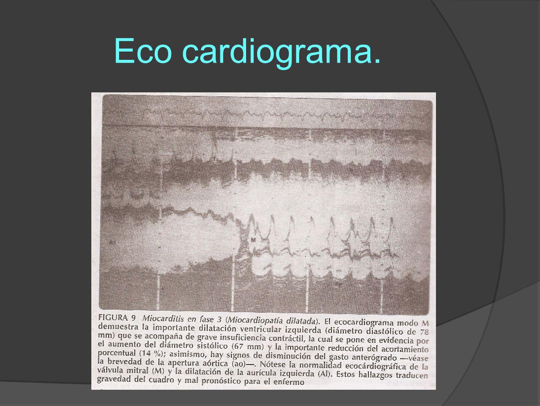 Eco cardiograma.
