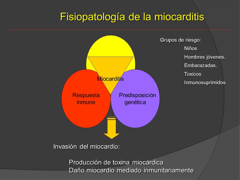 Fisiopatología de la miocarditis
