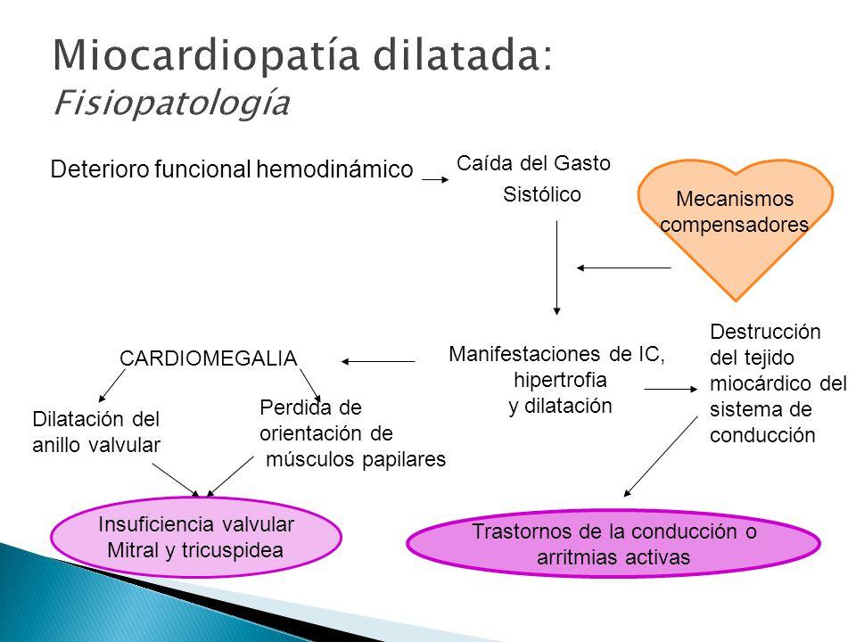 Miocardiopatía dilatada: Fisiopatología