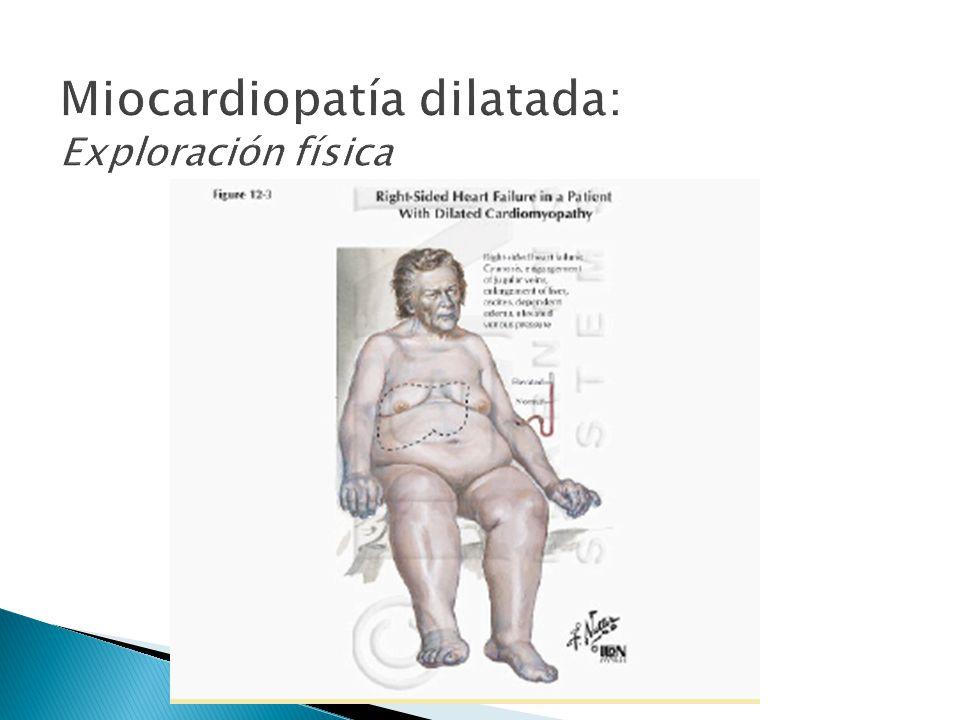 Miocardiopatía dilatada: Exploración física