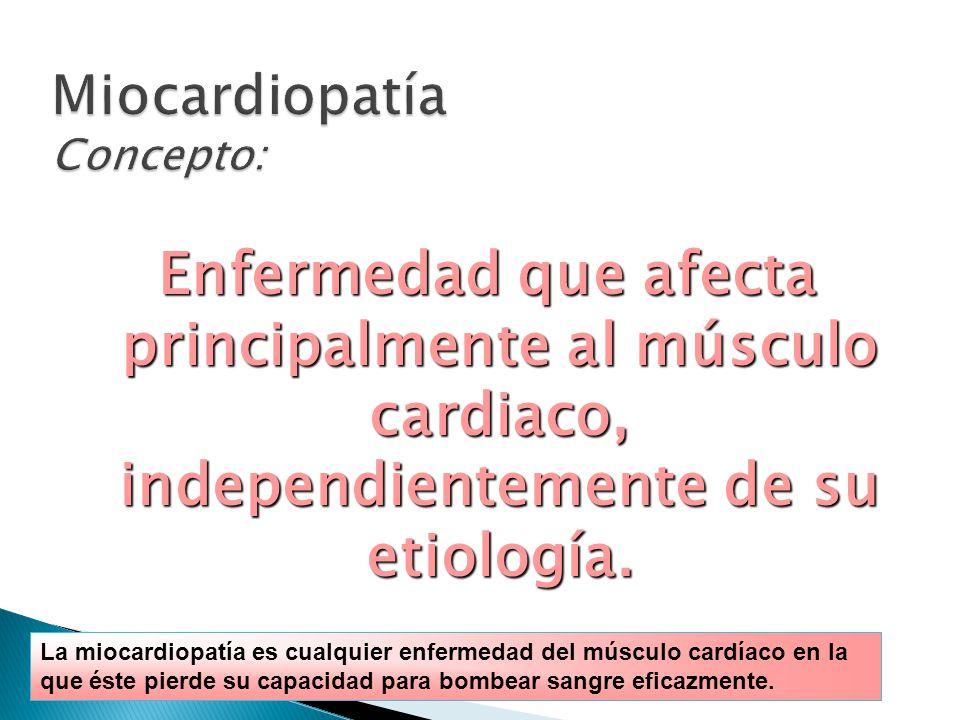 Miocardiopatía Concepto: