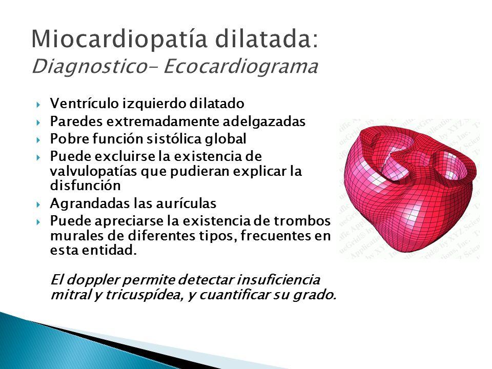 Miocardiopatía dilatada: Diagnostico- Ecocardiograma
