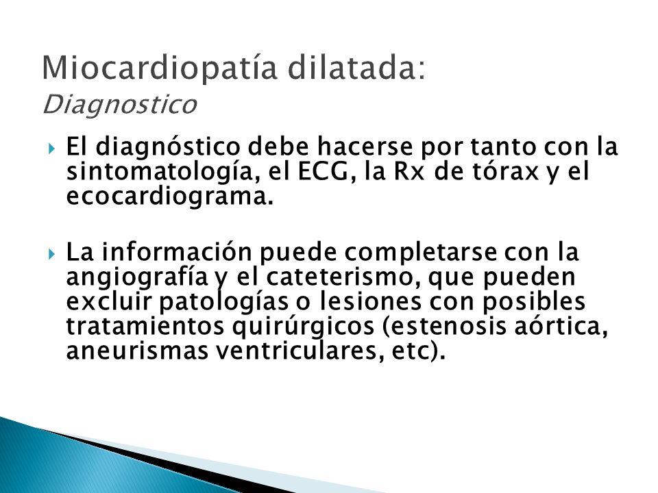 Miocardiopatía dilatada: Diagnostico