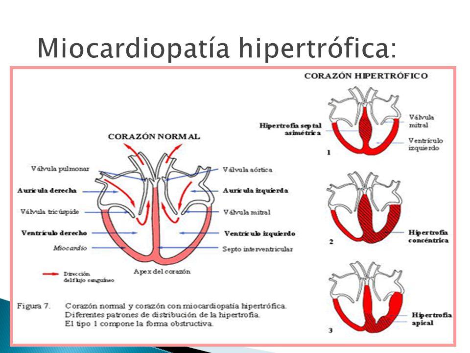 Miocardiopatía hipertrófica: