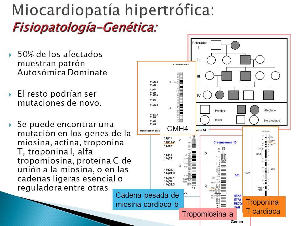 Miocardiopatía hipertrófica: Fisiopatología-Genética: