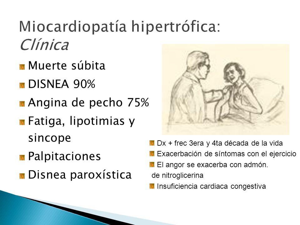 Miocardiopatía hipertrófica: Clínica