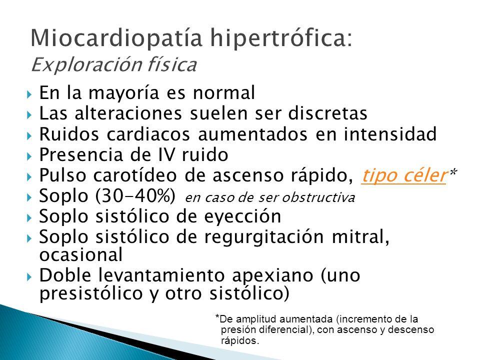 Miocardiopatía hipertrófica: Exploración física