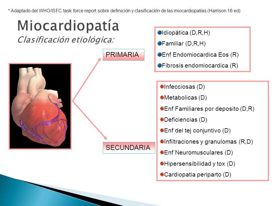 Miocardiopatía Clasificación etiológica: