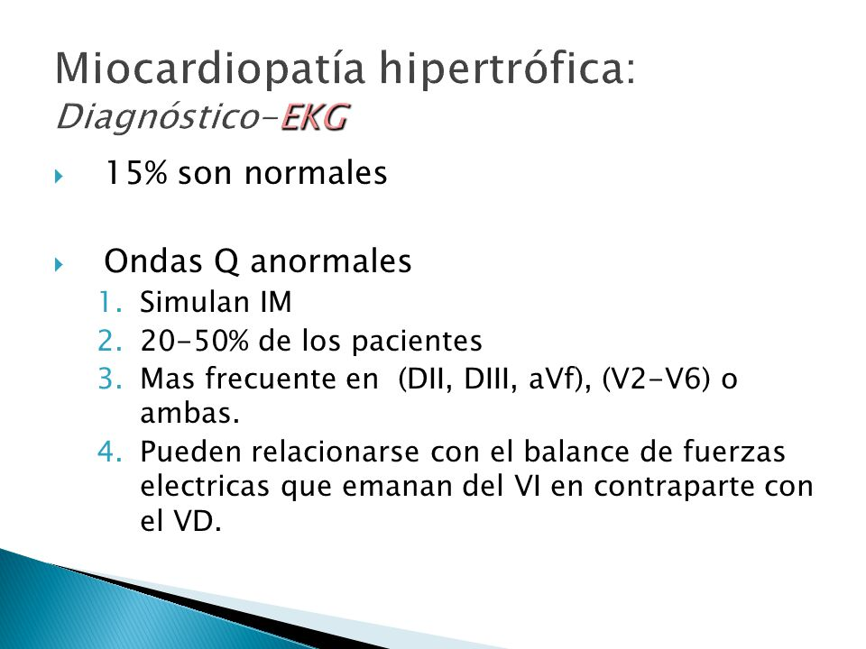 Miocardiopatía hipertrófica: Diagnóstico-EKG