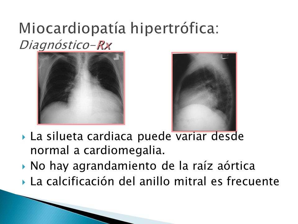 Miocardiopatía hipertrófica: Diagnóstico-Rx