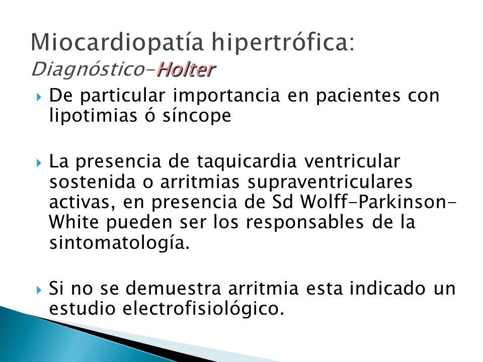 Miocardiopatía hipertrófica: Diagnóstico-Holter