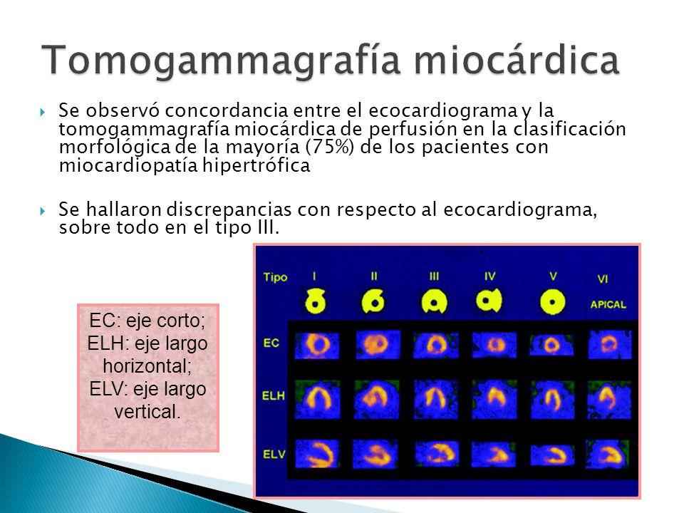 Tomogammagrafía miocárdica