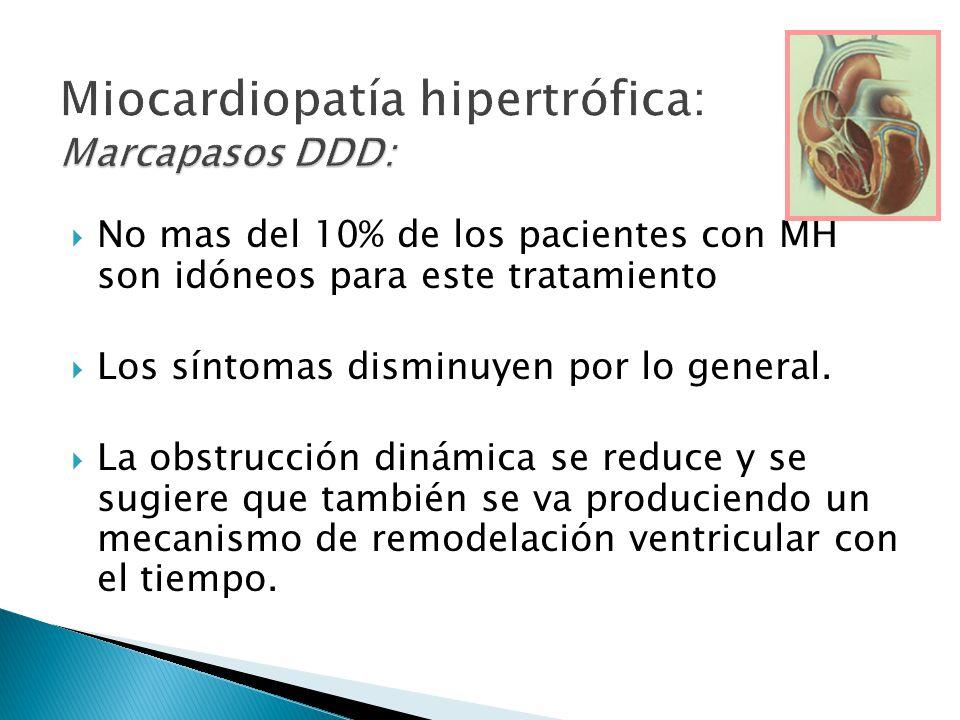 Miocardiopatía hipertrófica: Marcapasos DDD: