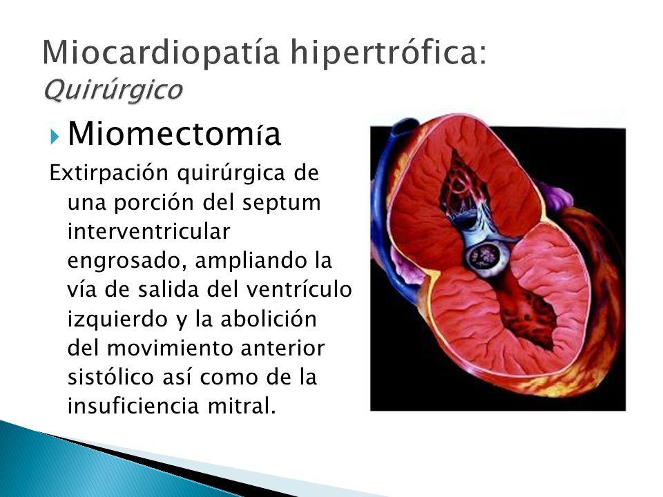 Miocardiopatía hipertrófica: Quirúrgico