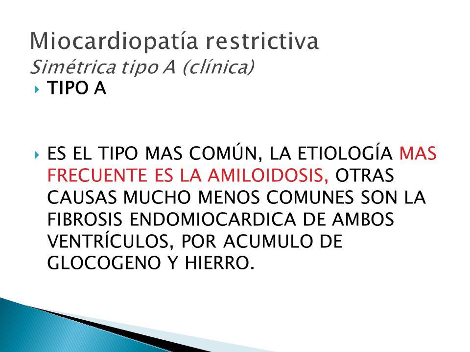 Miocardiopatía restrictiva Simétrica tipo A (clínica)