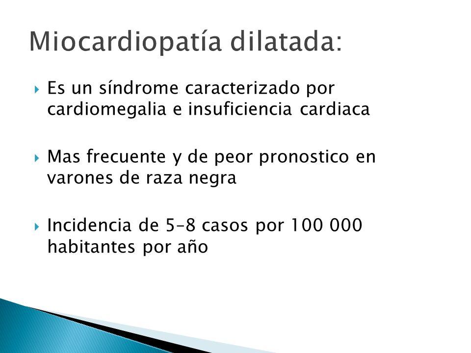 Miocardiopatía dilatada: