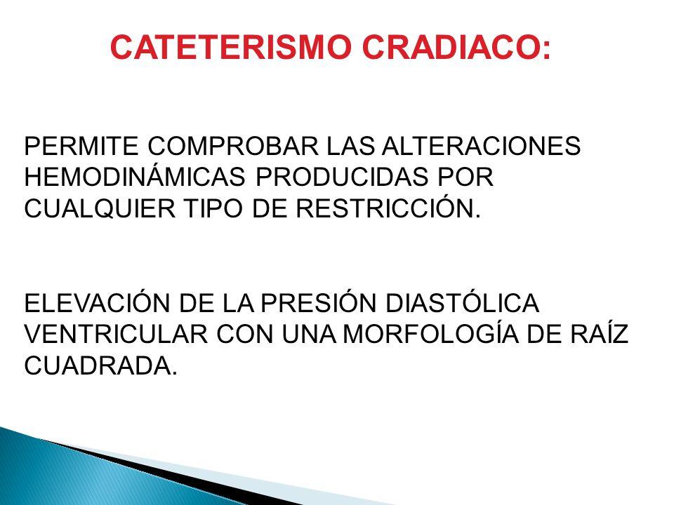 CATETERISMO CRADIACO:
