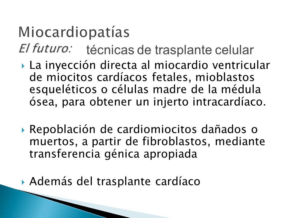 Miocardiopatías El futuro: