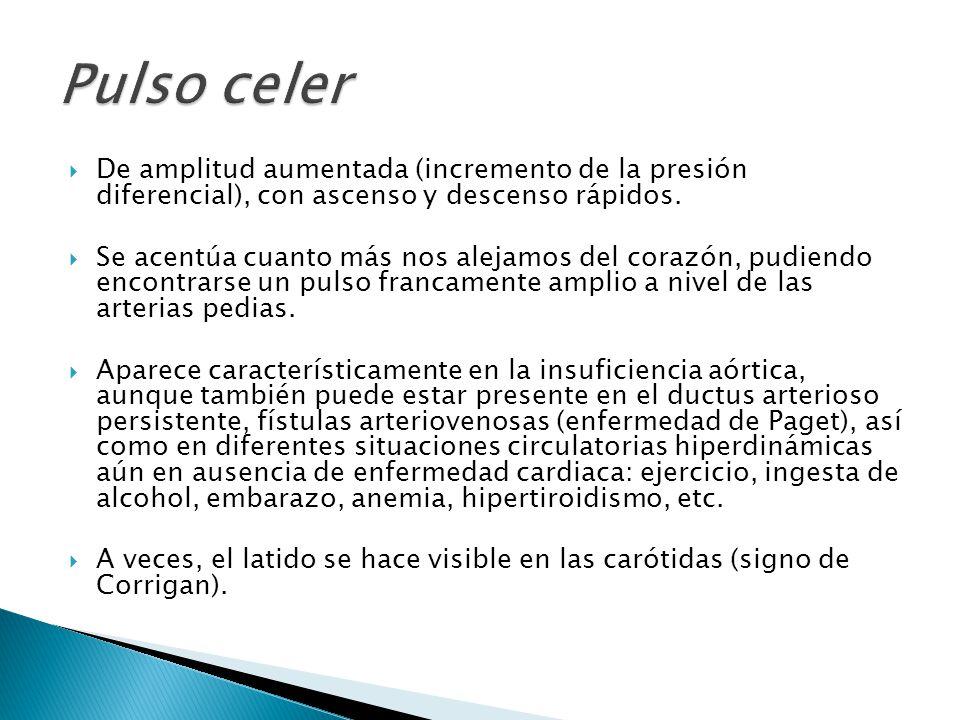 Pulso celer De amplitud aumentada (incremento de la presión diferencial), con ascenso y descenso rápidos.