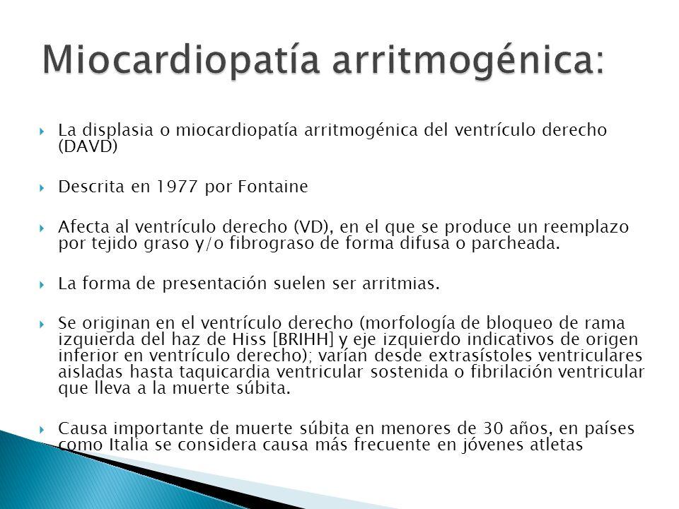 Miocardiopatía arritmogénica: