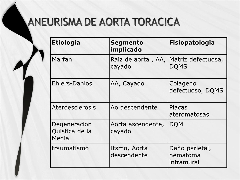 Etiologia Segmento implicado. Fisiopatologia. Marfan. Raiz de aorta , AA, cayado. Matriz defectuosa, DQMS.