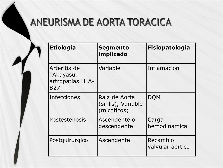 Etiologia Segmento implicado. Fisiopatologia. Arteritis de TAkayasu, artropatias HLA- B27. Variable.