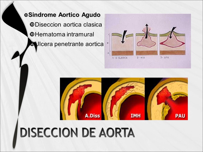 Sindrome Aortico Agudo