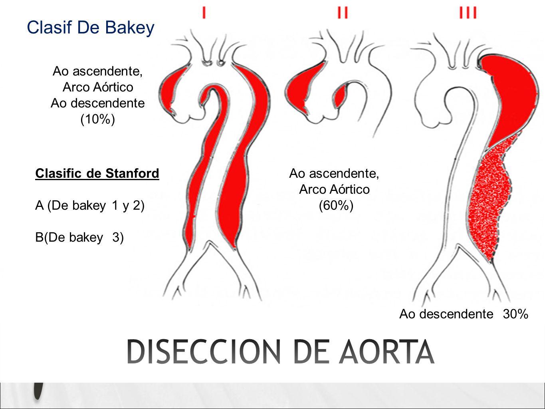 Clasif De Bakey Ao ascendente, Arco Aórtico Ao descendente (10%)