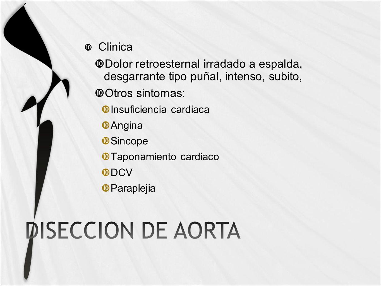 Clinica Dolor retroesternal irradado a espalda, desgarrante tipo puñal, intenso, subito, Otros sintomas: