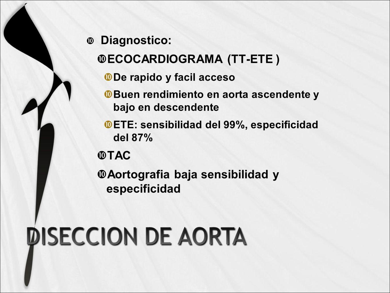 ECOCARDIOGRAMA (TT-ETE )