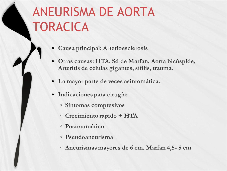 ANEURISMA DE AORTA TORACICA