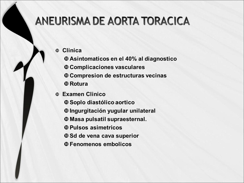 Clinica Asintomaticos en el 40% al diagnostico. Complicaciones vasculares. Compresion de estructuras vecinas.