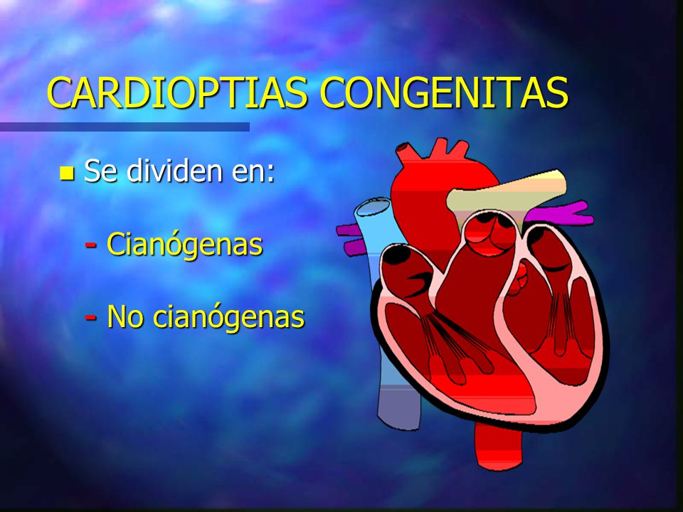 CARDIOPTIAS CONGENITAS