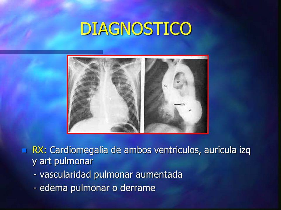 DIAGNOSTICO RX: Cardiomegalia de ambos ventriculos, auricula izq y art pulmonar. - vascularidad pulmonar aumentada.