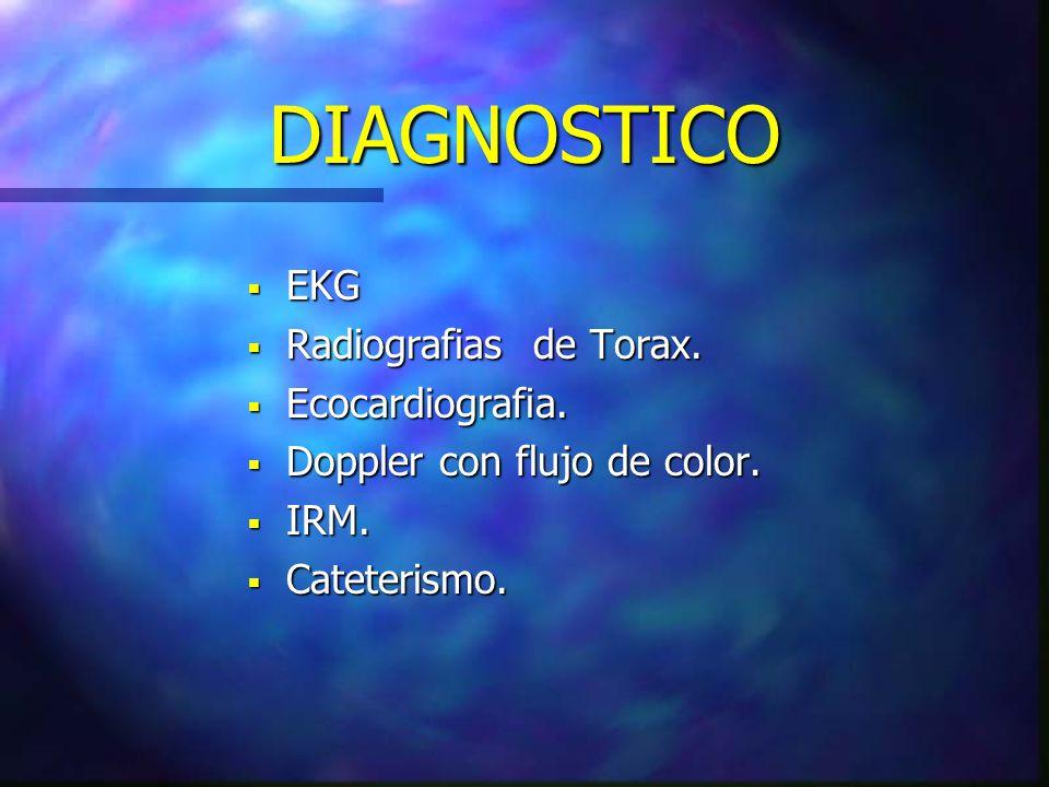 DIAGNOSTICO EKG Radiografias de Torax. Ecocardiografia.