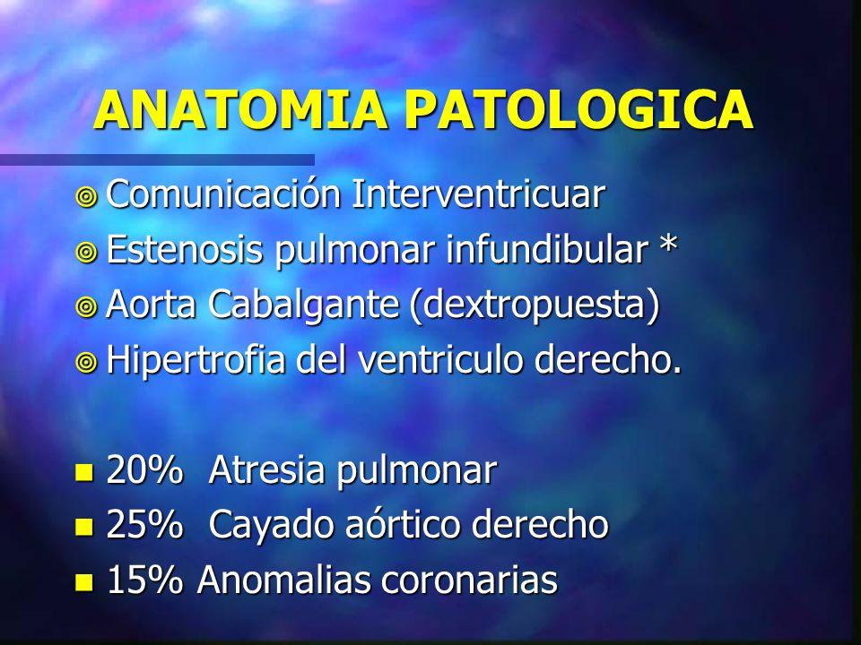 ANATOMIA PATOLOGICA Comunicación Interventricuar