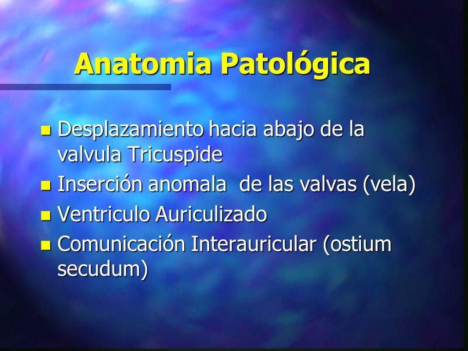 Anatomia Patológica Desplazamiento hacia abajo de la valvula Tricuspide. Inserción anomala de las valvas (vela)