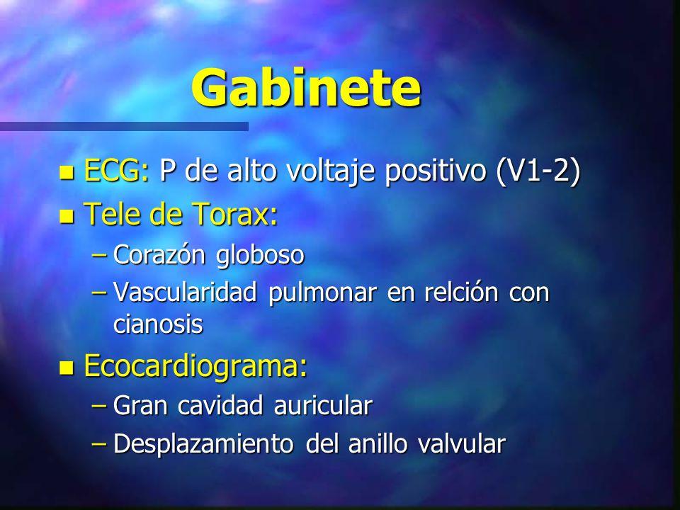 Gabinete ECG: P de alto voltaje positivo (V1-2) Tele de Torax: