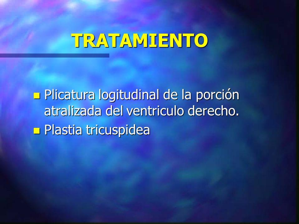 TRATAMIENTO Plicatura logitudinal de la porción atralizada del ventriculo derecho.