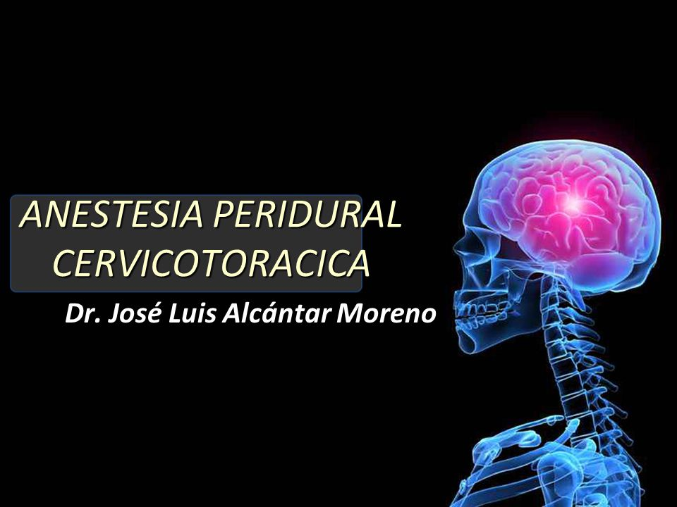 ANESTESIA PERIDURAL CERVICOTORACICA