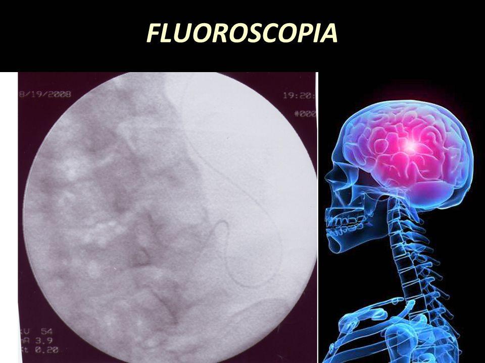 FLUOROSCOPIA