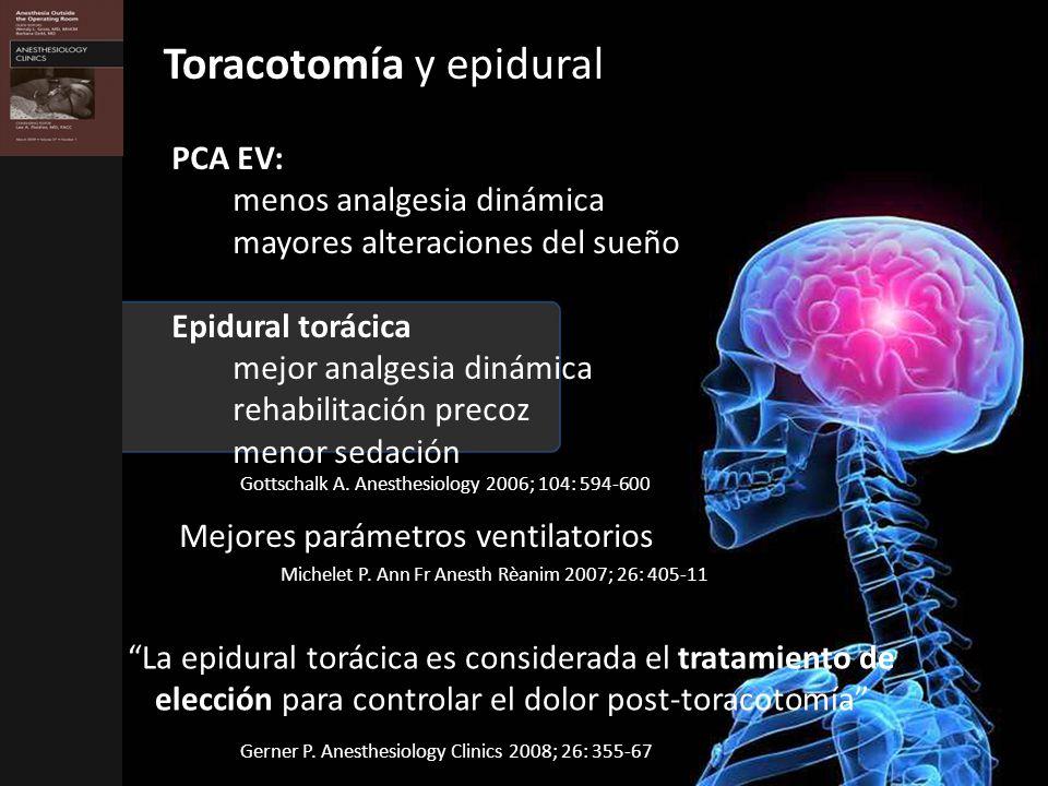 Toracotomía y epidural
