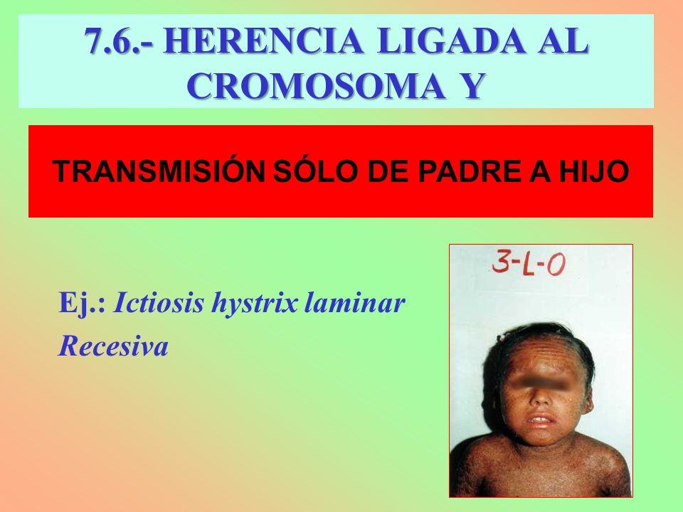 7.6.- HERENCIA LIGADA AL CROMOSOMA Y