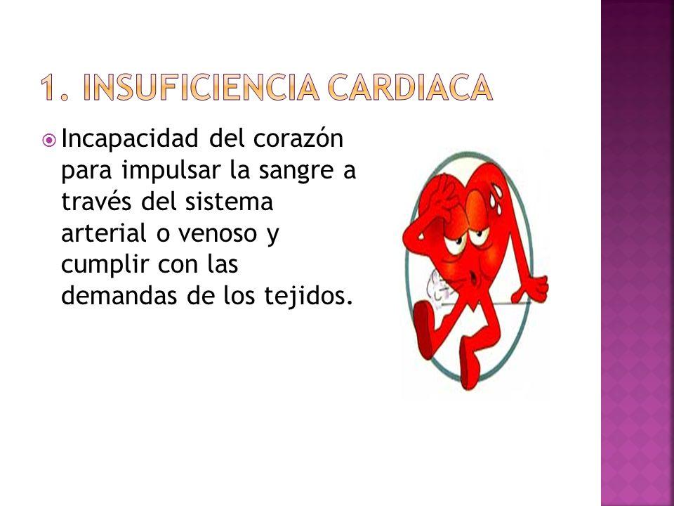 1. Insuficiencia cardiaca