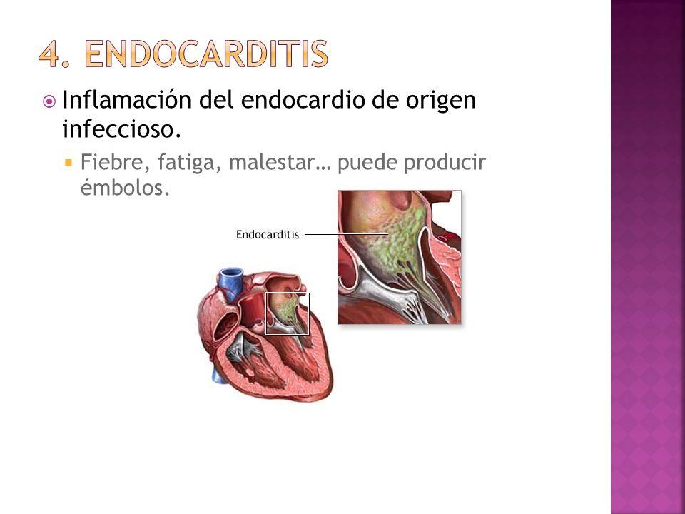 4. endocarditis Inflamación del endocardio de origen infeccioso.