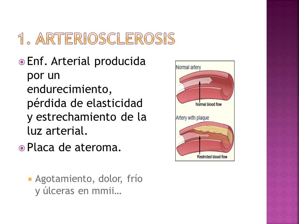 1. arteriosclerosis Enf. Arterial producida por un endurecimiento, pérdida de elasticidad y estrechamiento de la luz arterial.