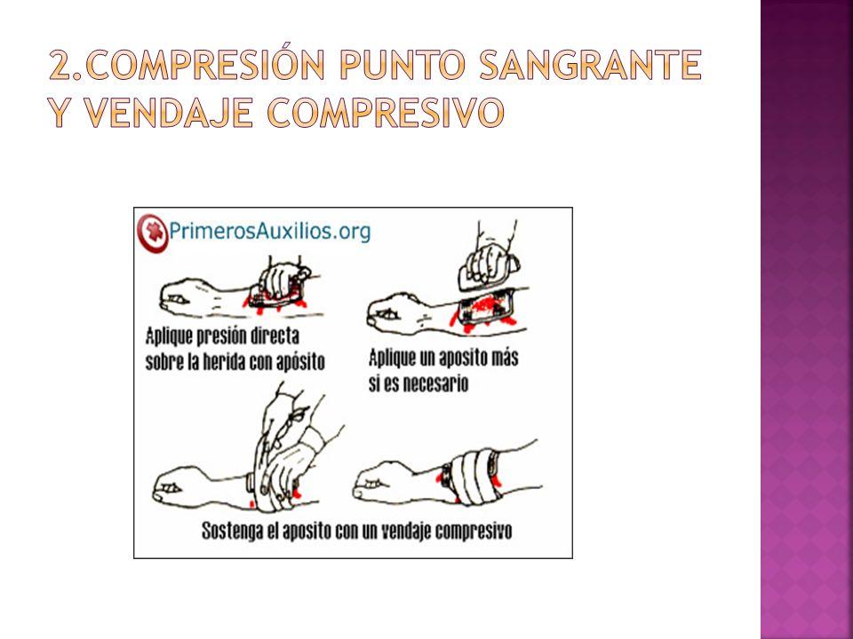2.COMPRESIÓN PUNTO SANGRANTE Y VENDAJE COMPRESIVO