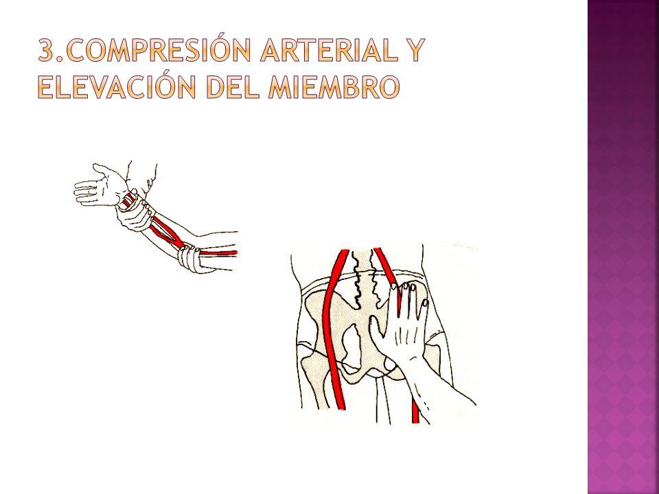 3.COMPRESIÓN ARTERIAL Y ELEVACIÓN DEL MIEMBRO